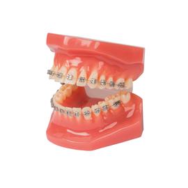 Демонстрационная модель челюсти paro®, размер 2 к 1