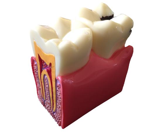 Демонстрационная модель кариеса зубов paro®
